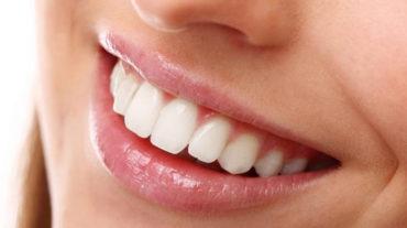 Odontoiatria estetica mininvasiva: le faccette dentali estetiche